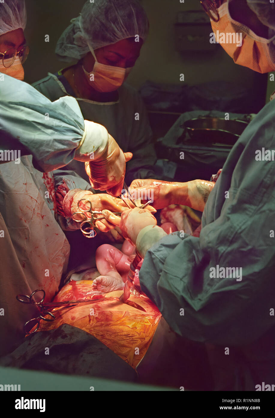 In the operating room during a cesarean section surgery
