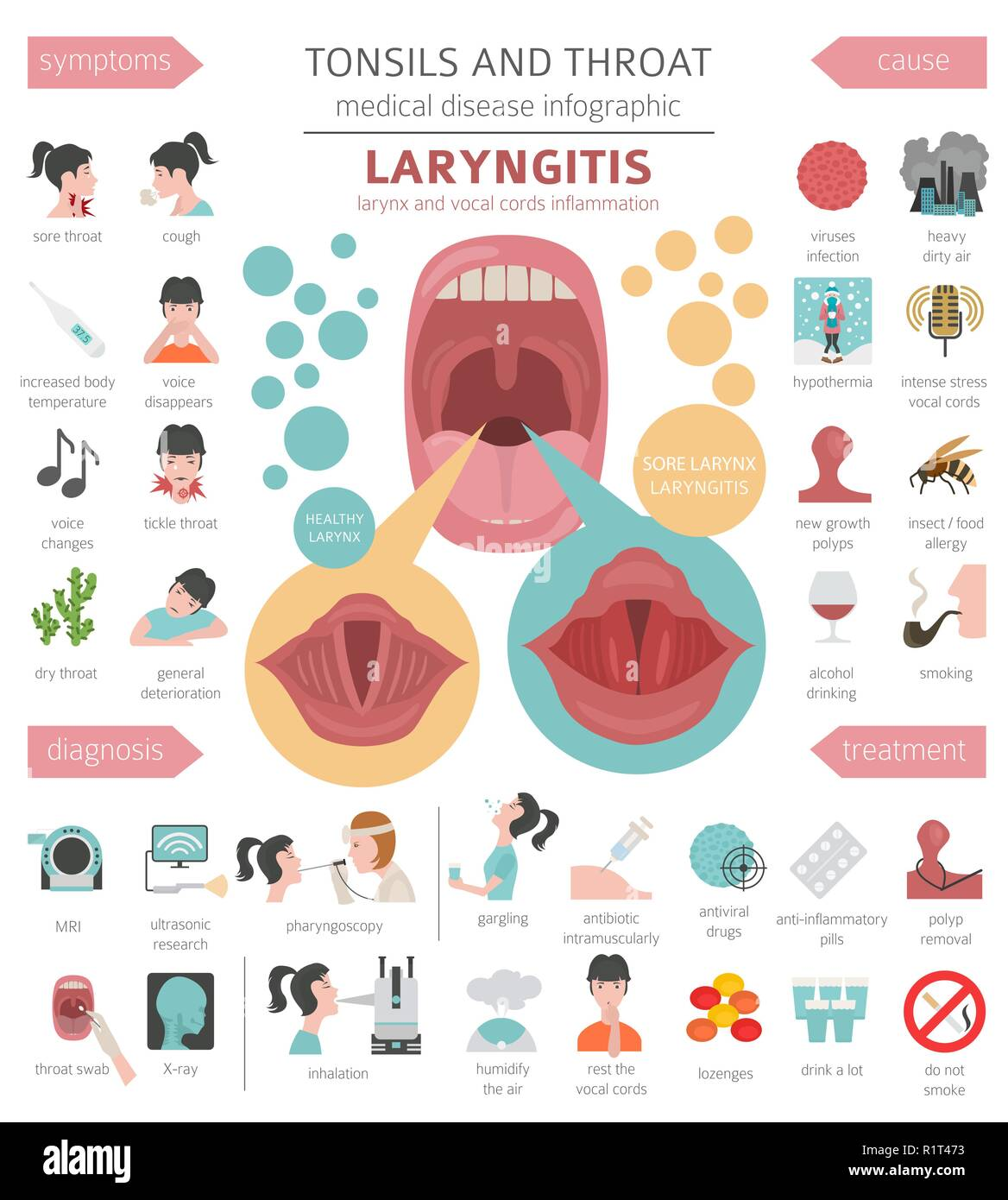 Tonsils and throat diseases. Laryngitis symptoms, treatment icon set. Medical infographic design. Vector illustration - Stock Vector