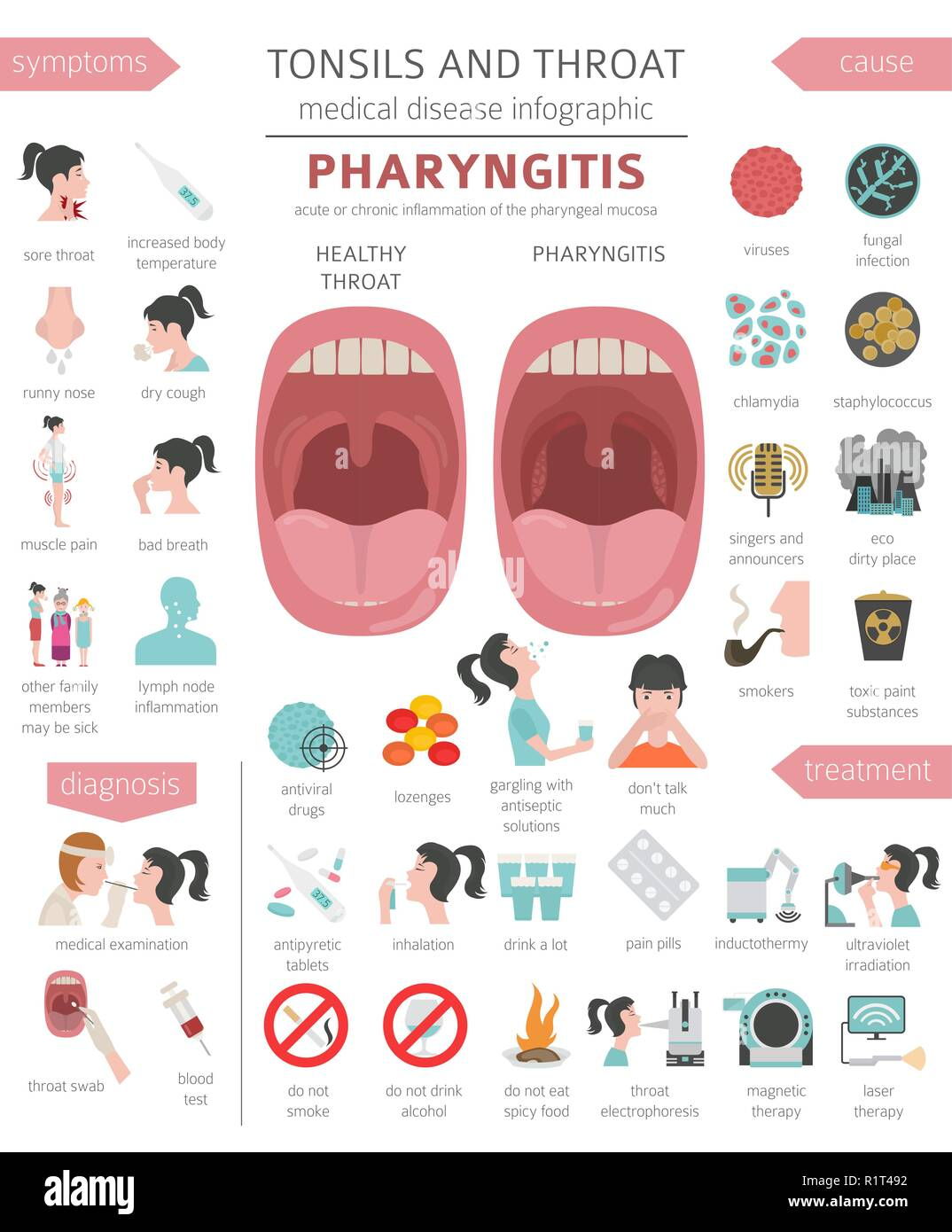 Tonsils and throat diseases. Pharyngitis symptoms, treatment icon set. Medical infographic design. Vector illustration - Stock Vector
