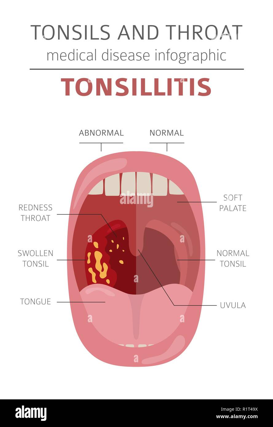 Tonsils and throat diseases. Tonsillitis symptoms, treatment icon set. Medical infographic design. Vector illustration - Stock Vector