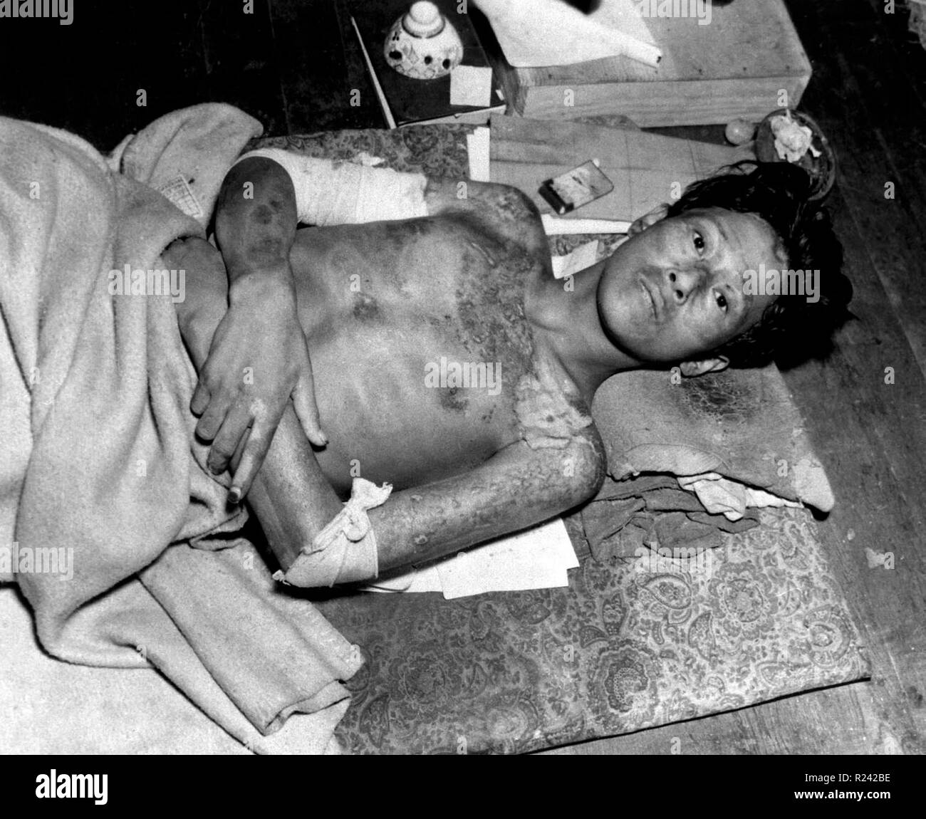 World War II, casualty after the explosion of the atom bomb in August 1945 Hiroshima, Japan Stock Photo