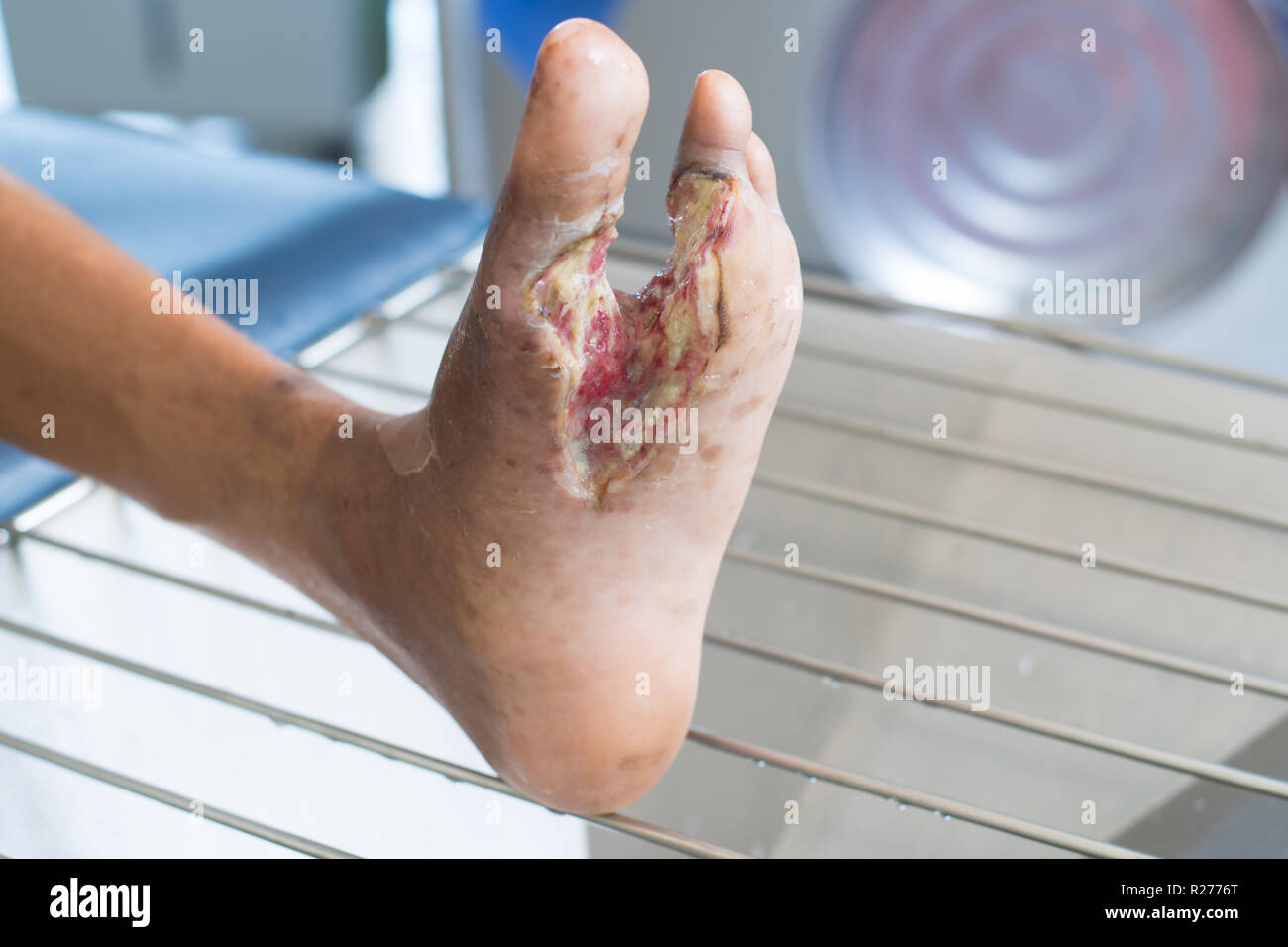 Diabetes Foot Infection Wound Stock Photo Alamy