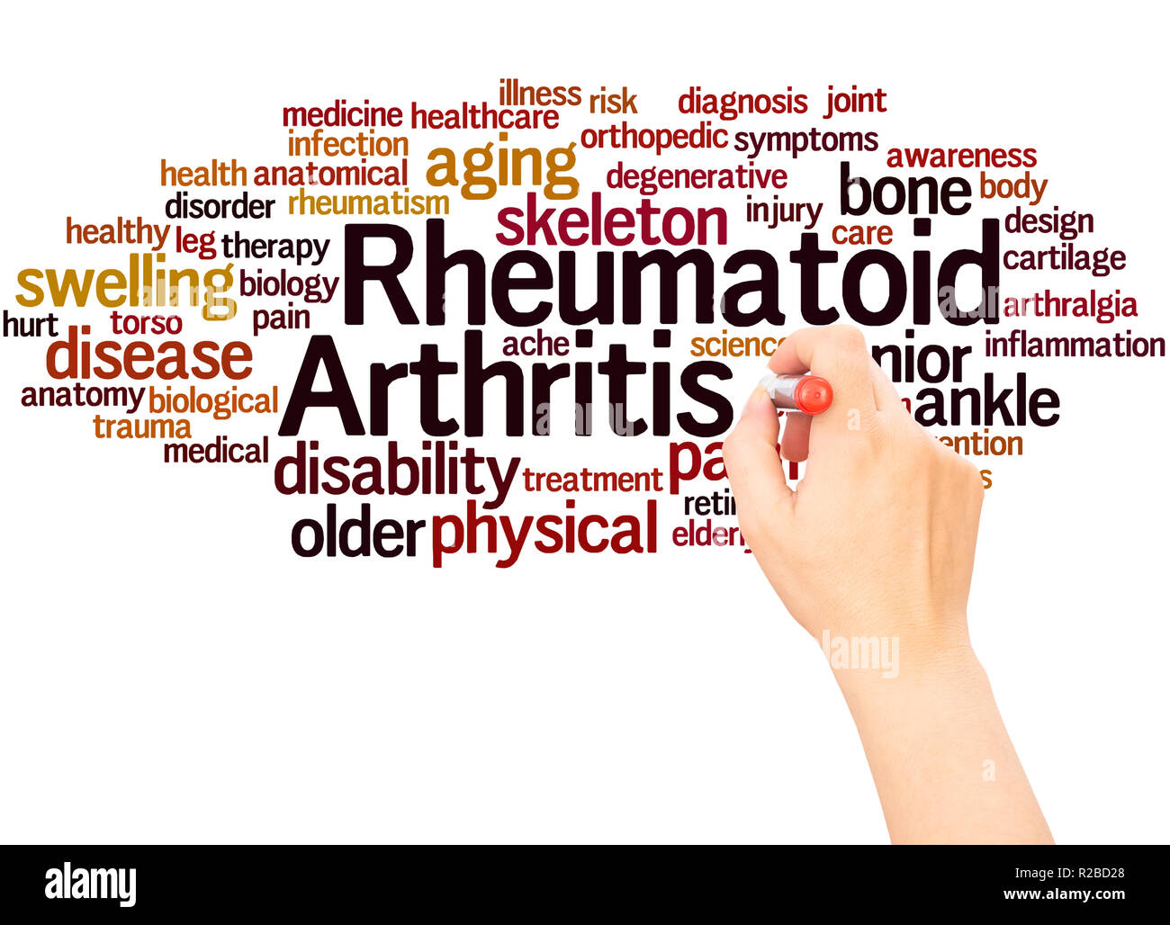 A Writer Triumphs Over Rheumatoid Arthritis