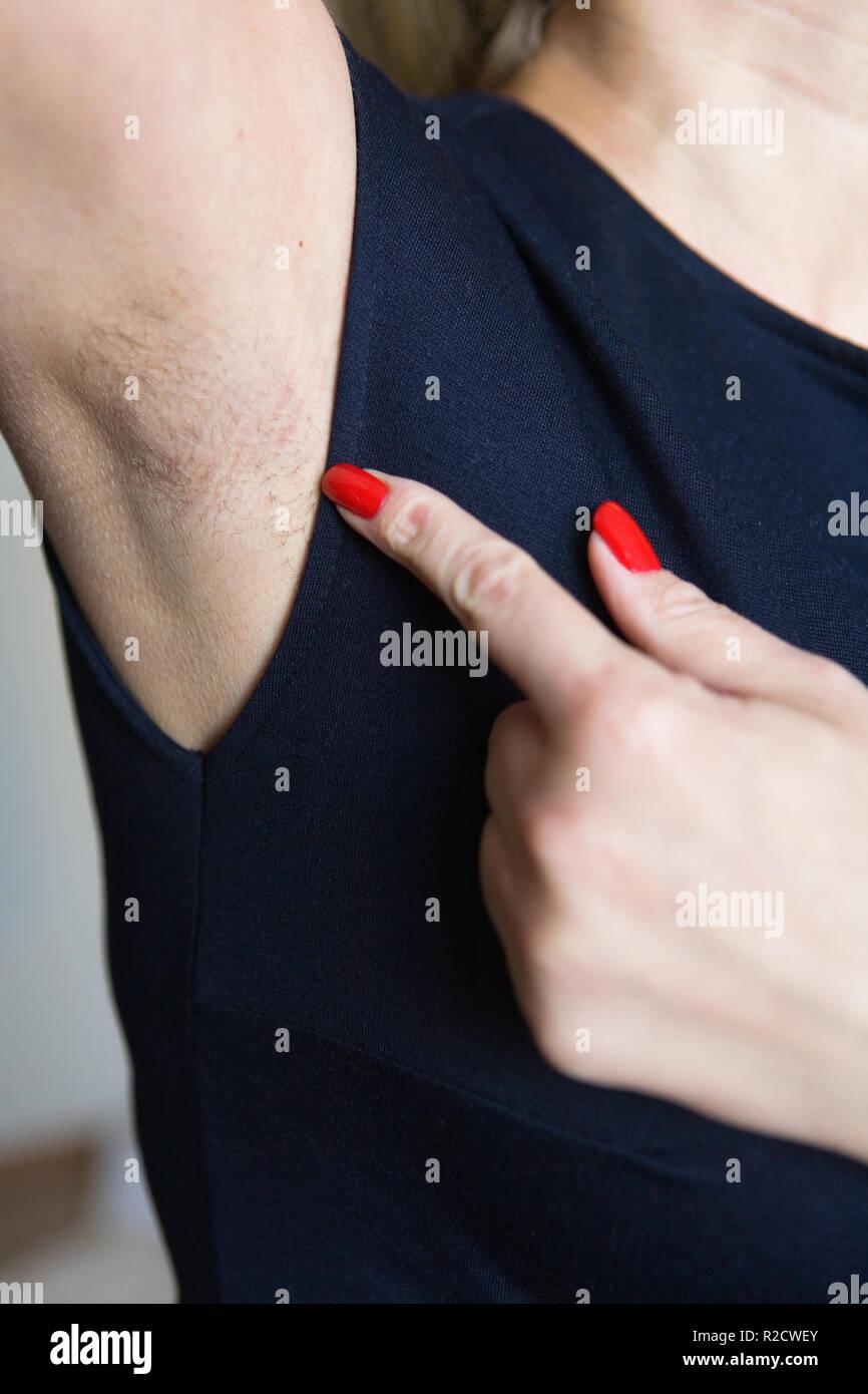Female finger shows unshaven armpit. Body care. - Stock Image