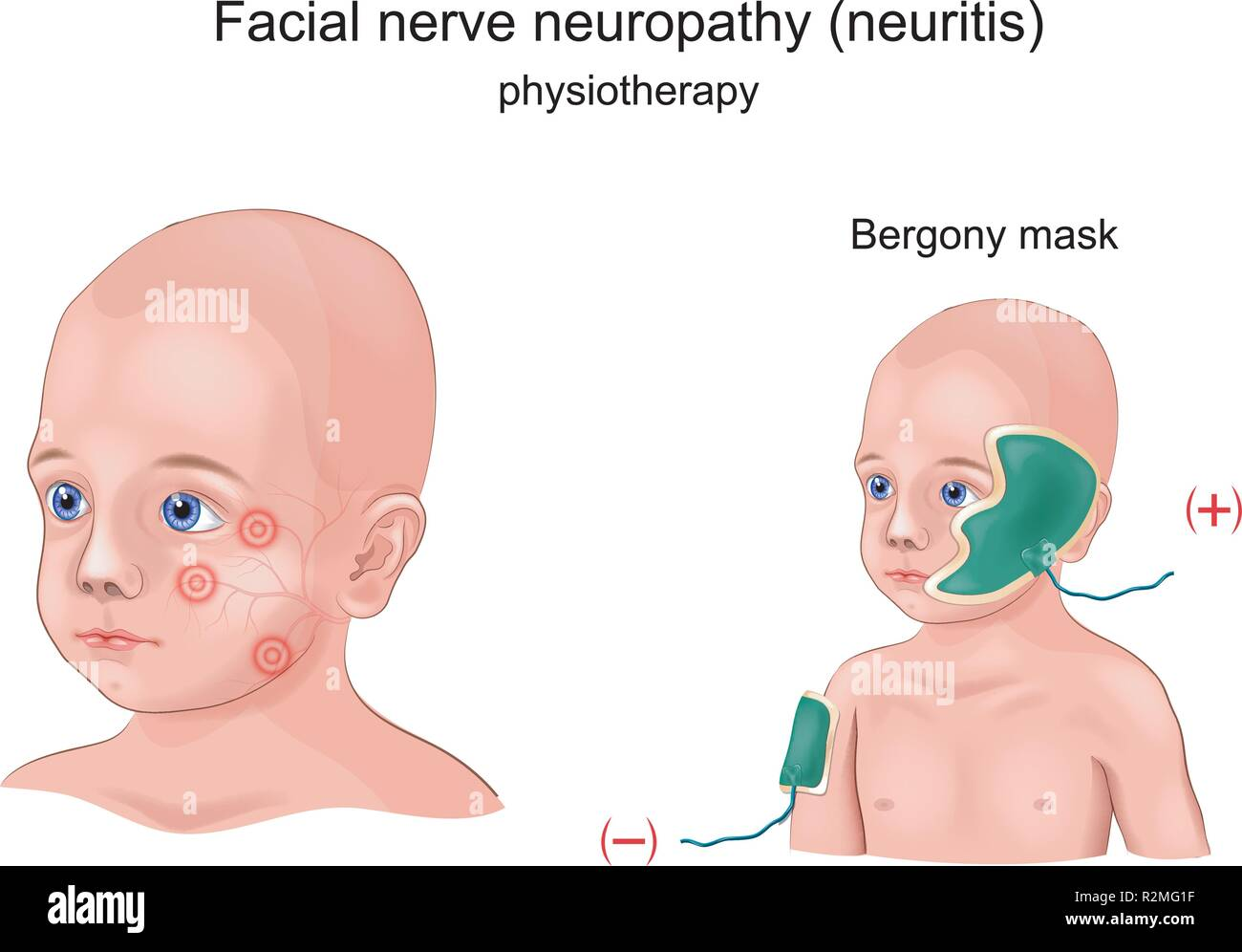 vector illustration of physiotherapy Bergony mask of facial nerve neuritis in a child - Stock Image