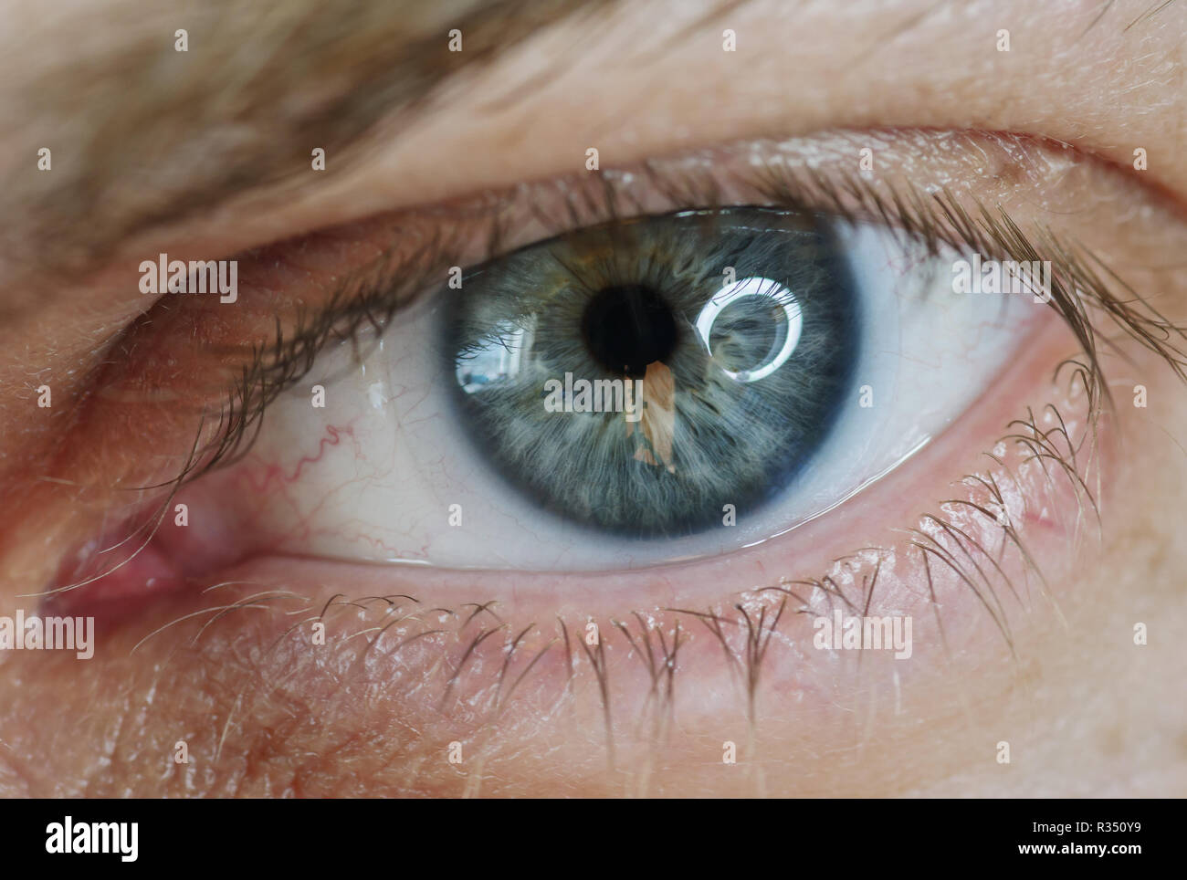 0b05362c Blue man eye with contact lens, macro shot. Shallow depth of field. -