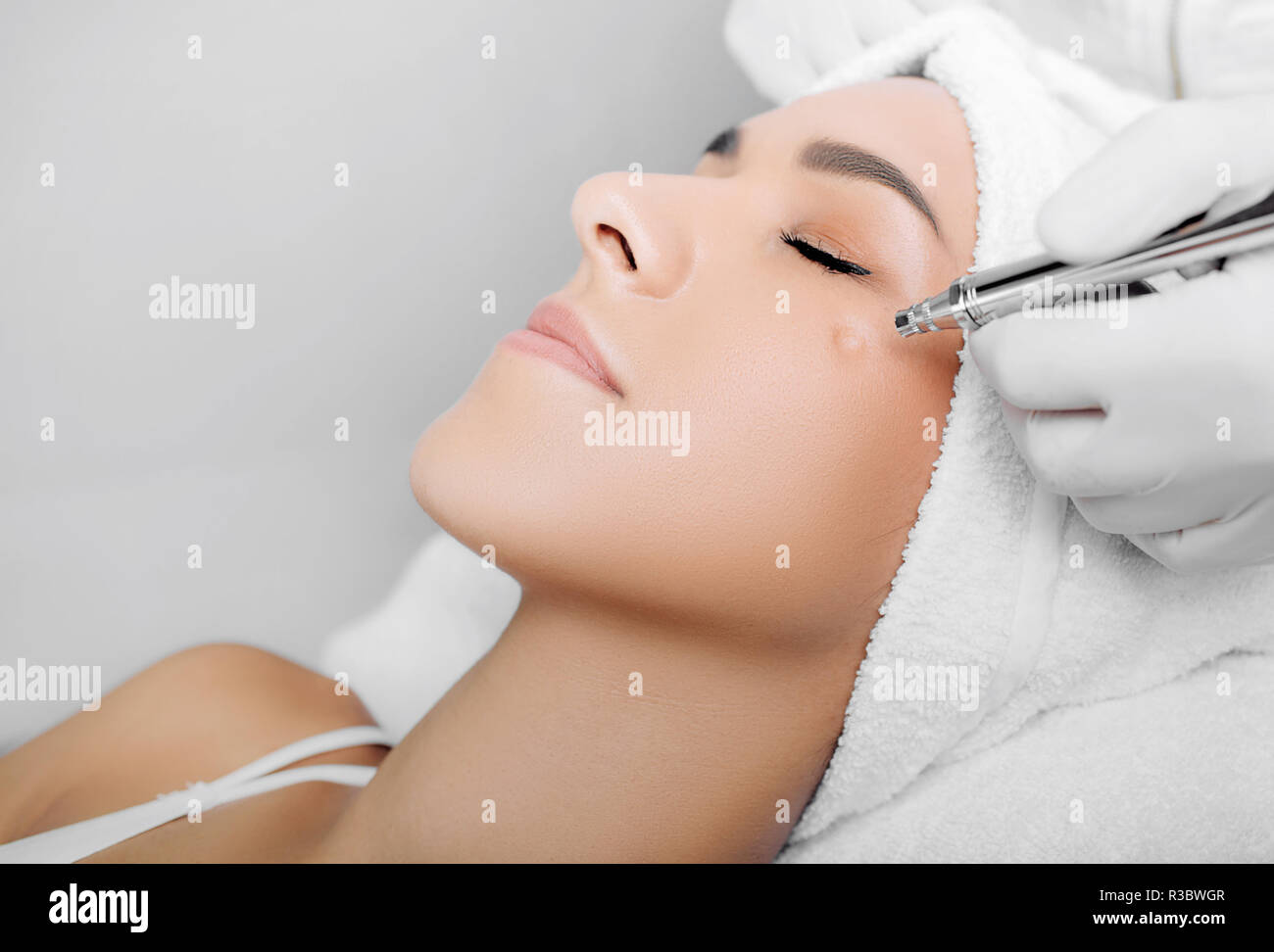 anti-aging face peel, procedure renewing skin , jet peeling Stock Photo