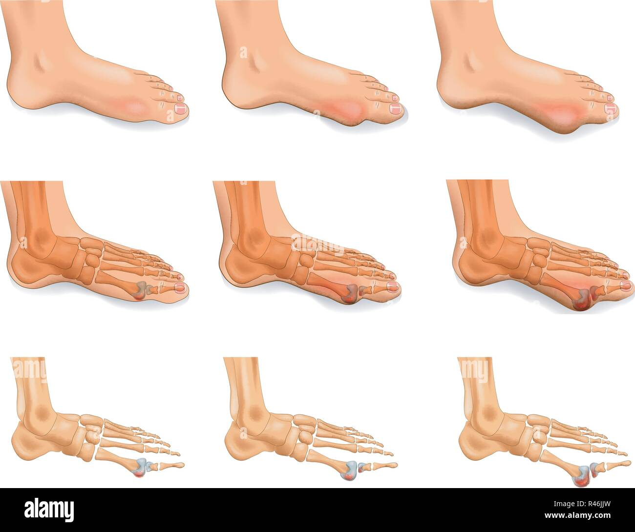 vector illustration of arthritis, arthrosis of the big toe - Stock Image