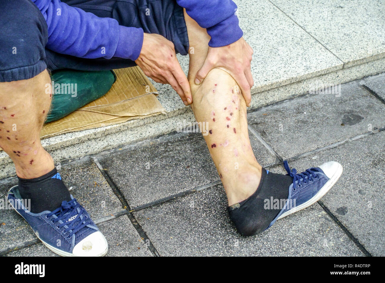 drug addict, bloody scabs after injection on skin, legs Stock Photo