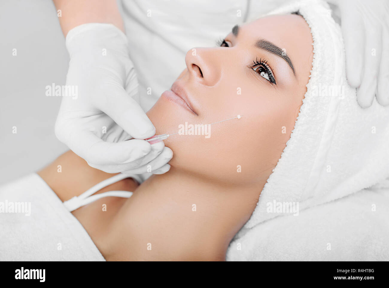cropped woman face getting facelift , procedure mesothreads lifting skin Stock Photo