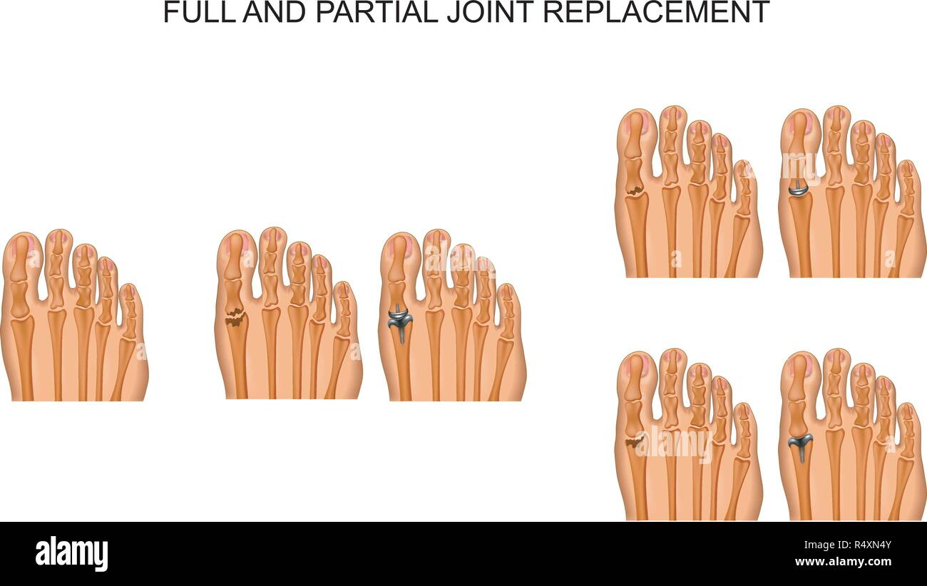 vector illustration of partial and complete arthroplasty of the big toe joint - Stock Vector