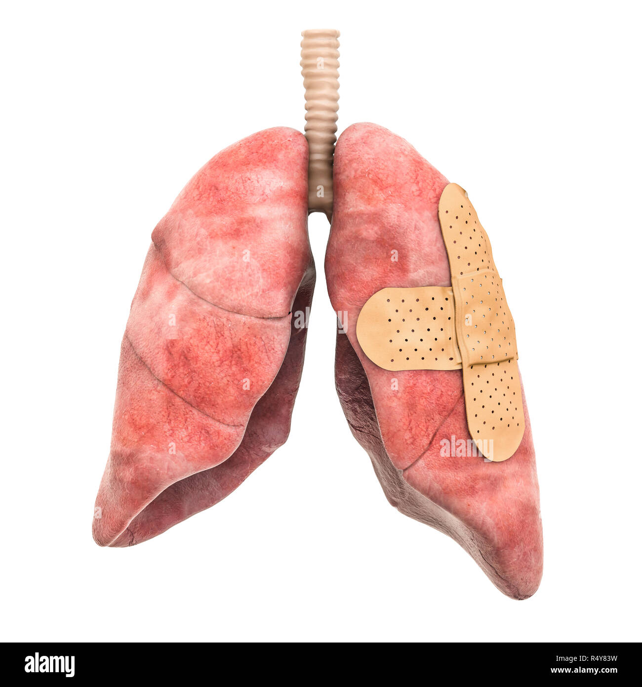 Human lungs with adhesive bandages. Treatment of lungs concept, 3D rendering isolated on white background - Stock Image
