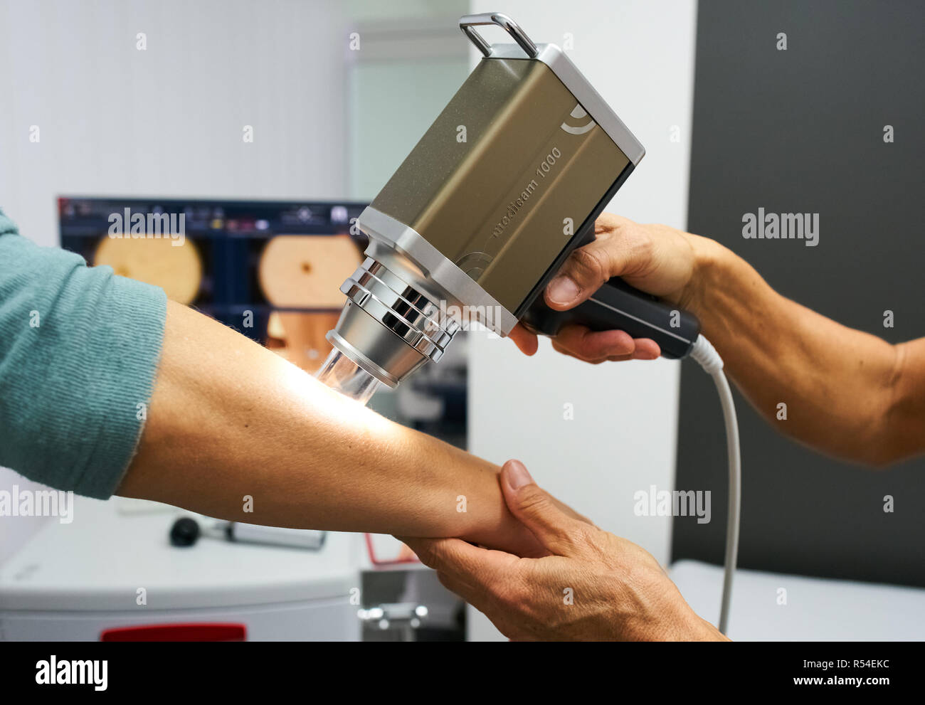 A skin doctor is doing a skin cancer screening with a Dermoscope Medicam 1000 at the arm of a patient with a modern FotoFinder system in Munich, Novem - Stock Image