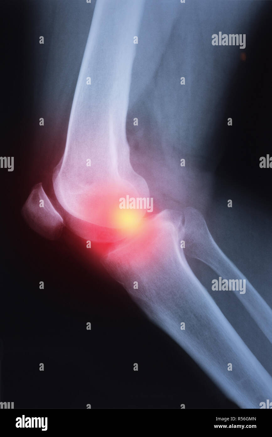 Medical x-ray knee joint image with arthritis ( Gout , Rheumatoid arthritis , Septic arthritis , Osteoarthritis knee ) - Stock Image