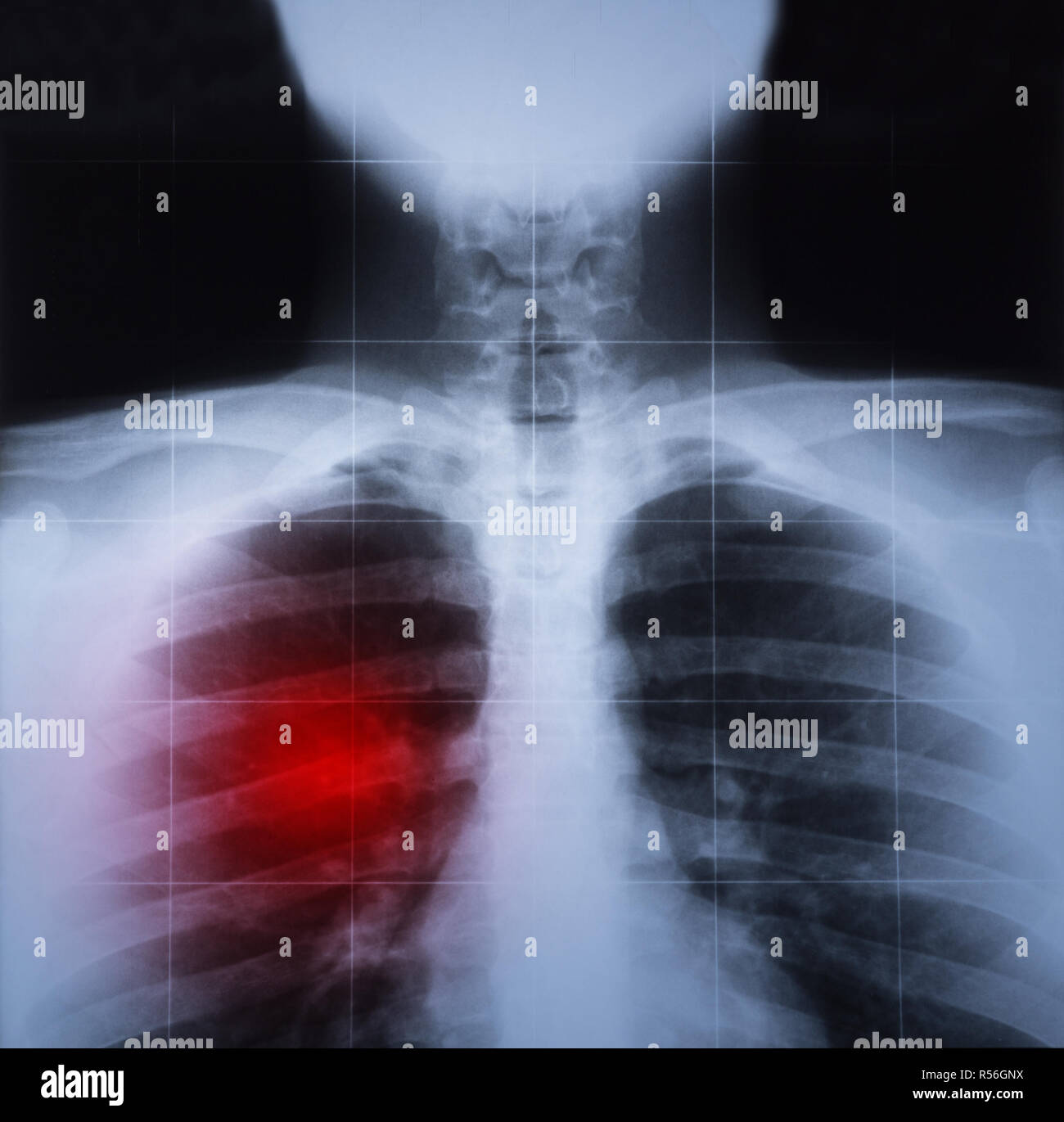 X ray image of chest and lung disease highlighted in red - Stock Image