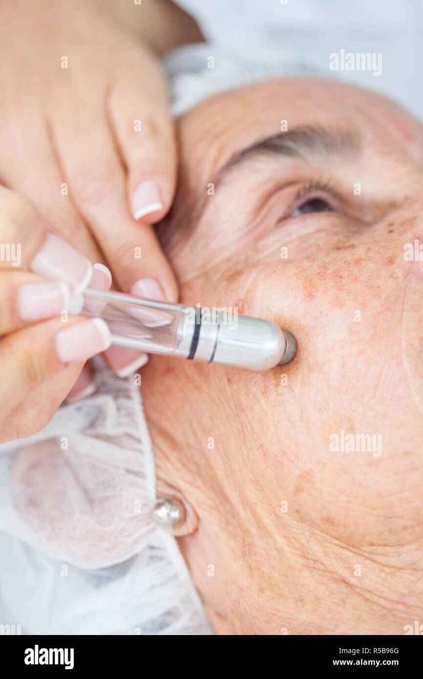 Microdermabrasion treatment on a senior woman face Stock Photo