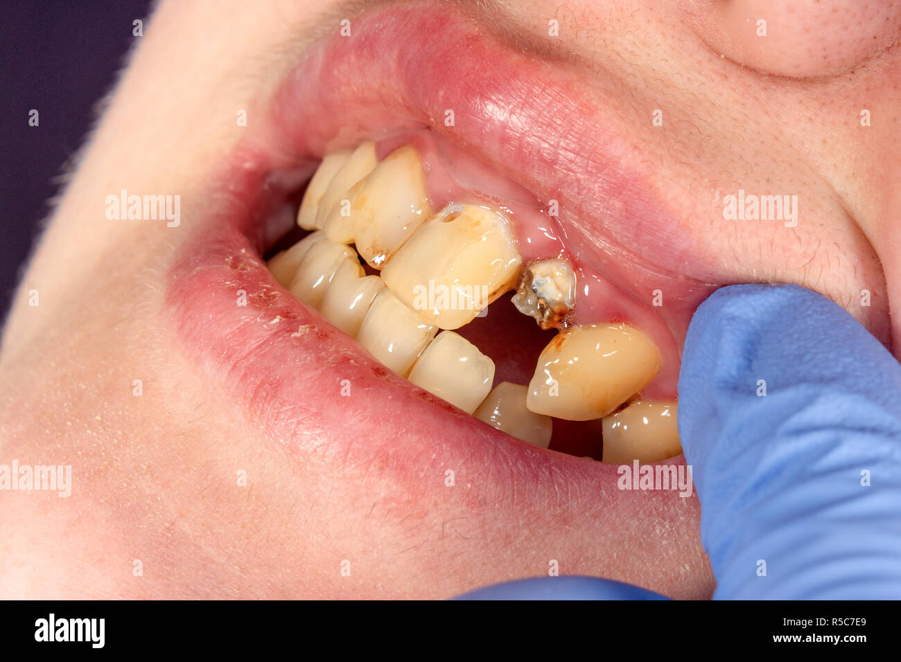 Dental pin close-up, preparation of the tooth for the formulation of the ceramic crown. The concept of prosthetics in dentistry - Stock Image