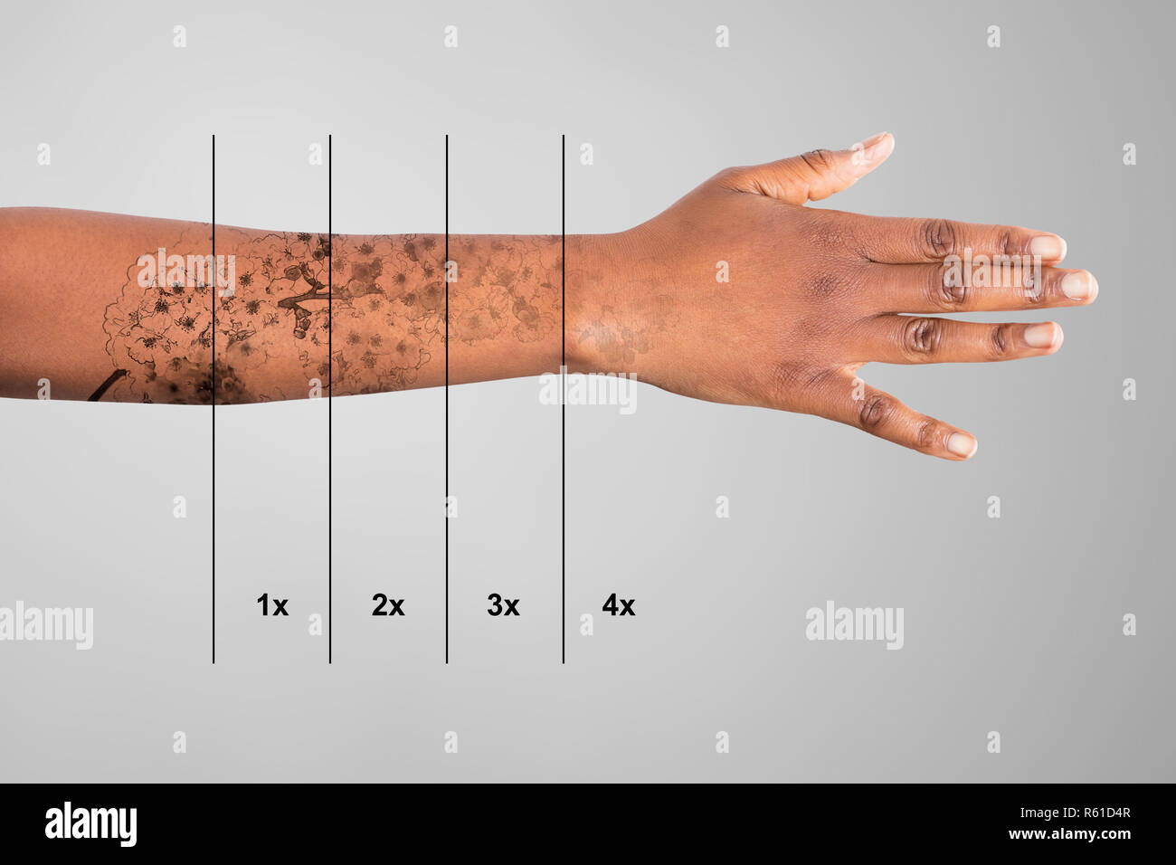 Laser Tattoo Removal On Woman\'s Hand Stock Photo: 227454999 - Alamy