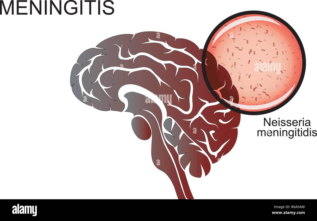 illustration of the brain, meningitis, the causative agent of meningitis. neuroscience - Stock Image