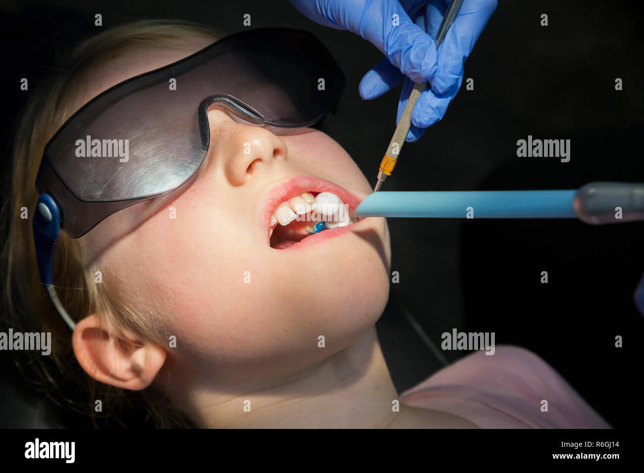 Application of fissure sealant (blue gel, prior to hardening with UV ultraviolet light) to back teeth that have suffered from fluorosis / hypomineralisation of tooth enamel. UK. (104) - Stock Image