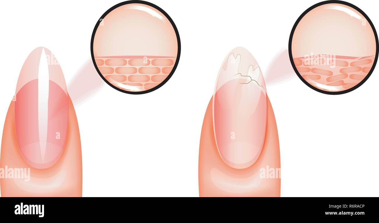 vector illustration of nail healthy and sick under magnification. for medical and promotional publications - Stock Image