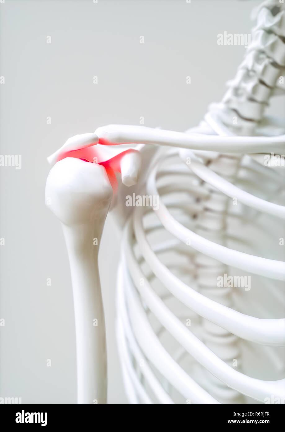 Shoulder pain - 3D Rendering - Stock Image