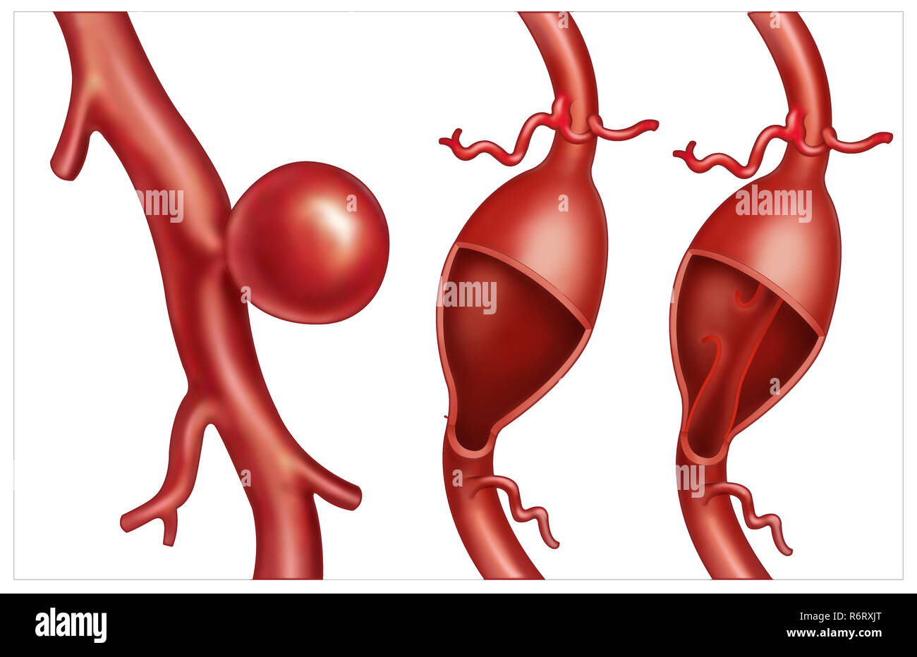 Types of aneurysms - Stock Image