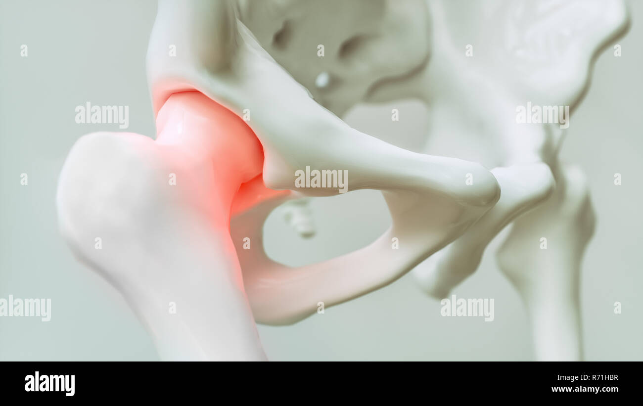 Hip pain from arthrosis - 3D Rendering - Stock Image