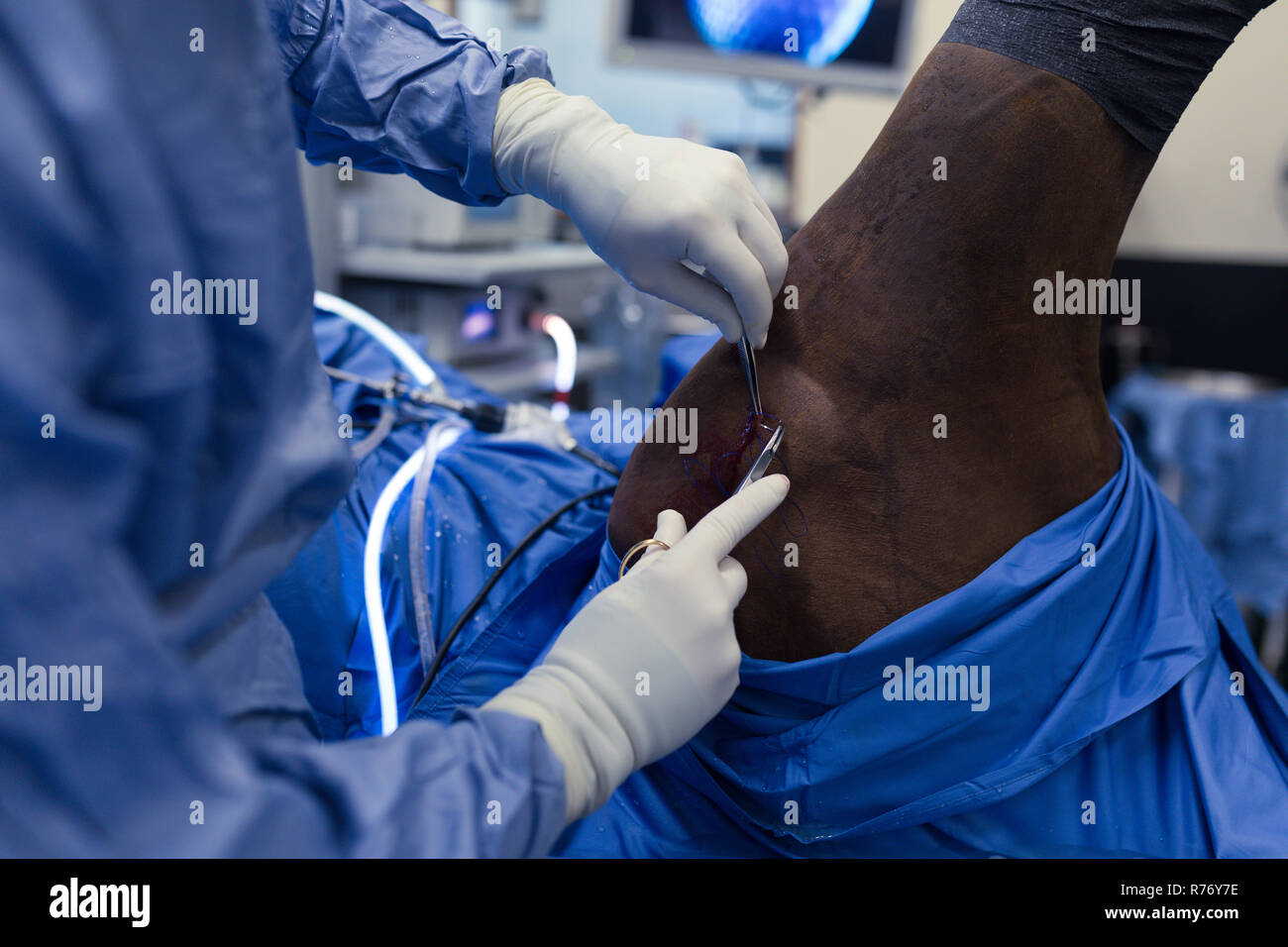 Female surgeon examining a horse in operation theatre - Stock Image