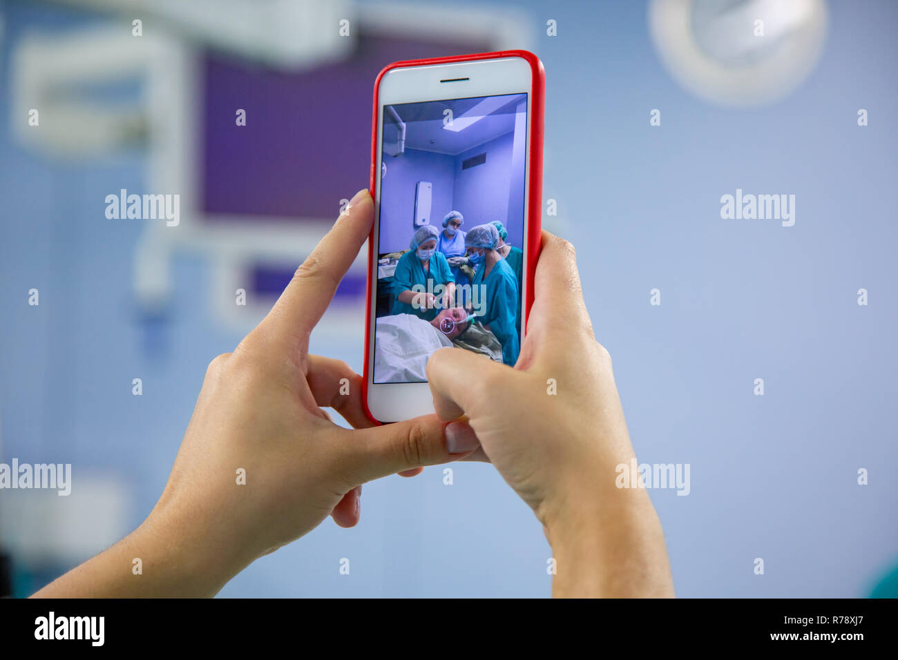 Assistant shooting on the smartphone from the operating room. Medical Team Performing Surgical Operation in Modern Operating Room - Stock Image