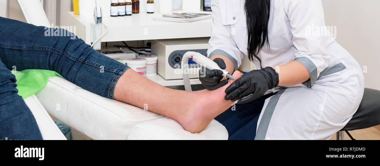 Toe Nail Damage Stock Photos & Toe Nail Damage Stock Images
