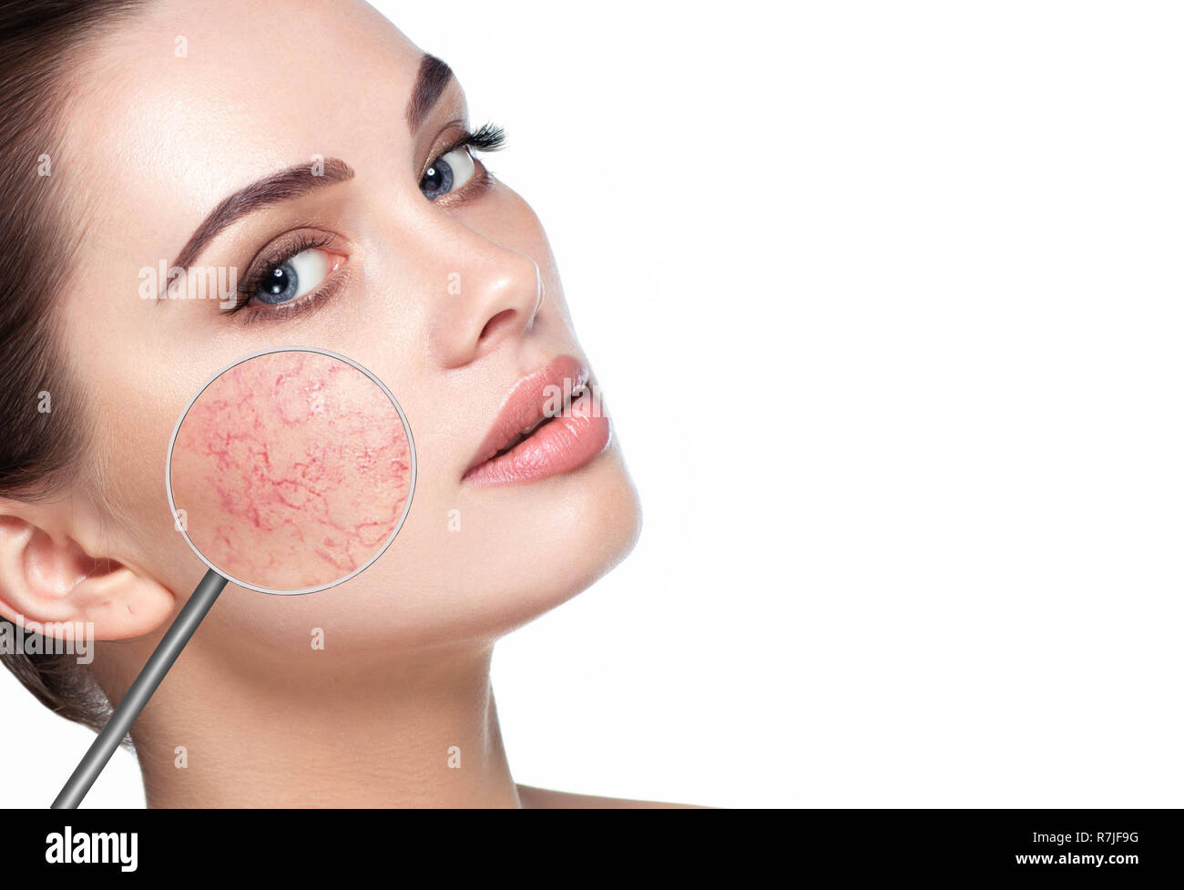 magnifying glass showing couperose on womans face - Stock Image