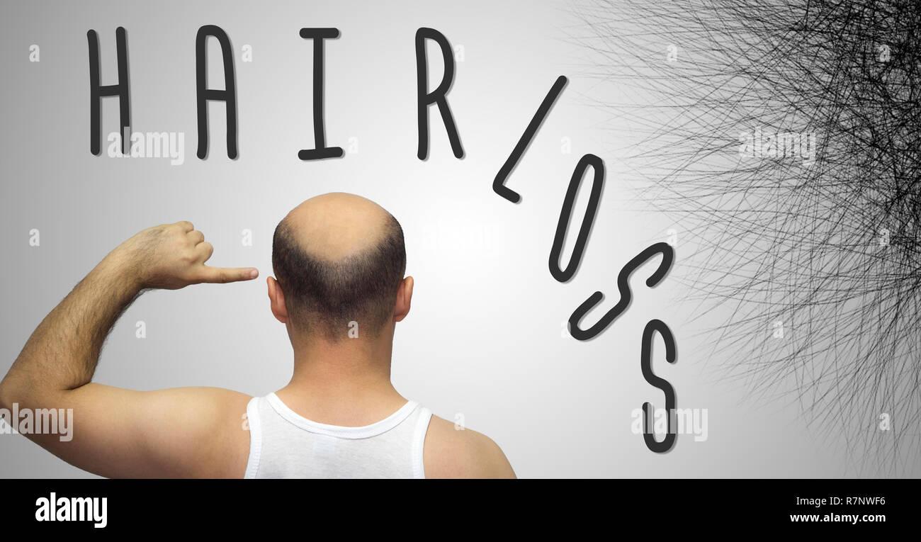 Human hair loss - adult man hand pointing his bald head Stock Photo