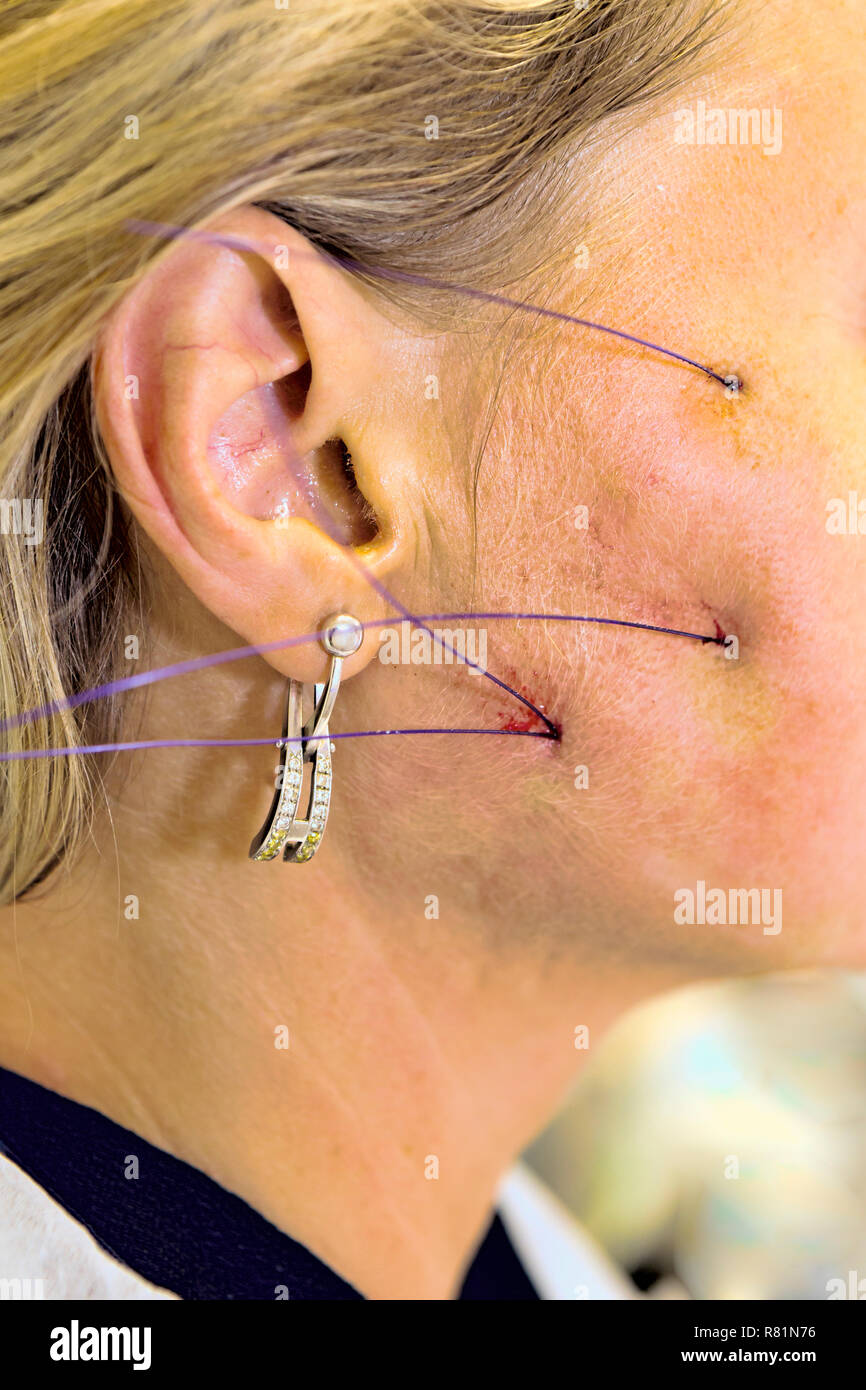 Dermatologist performs anti-age procedure using PDO thread on middle-aged woman patient. - Stock Image