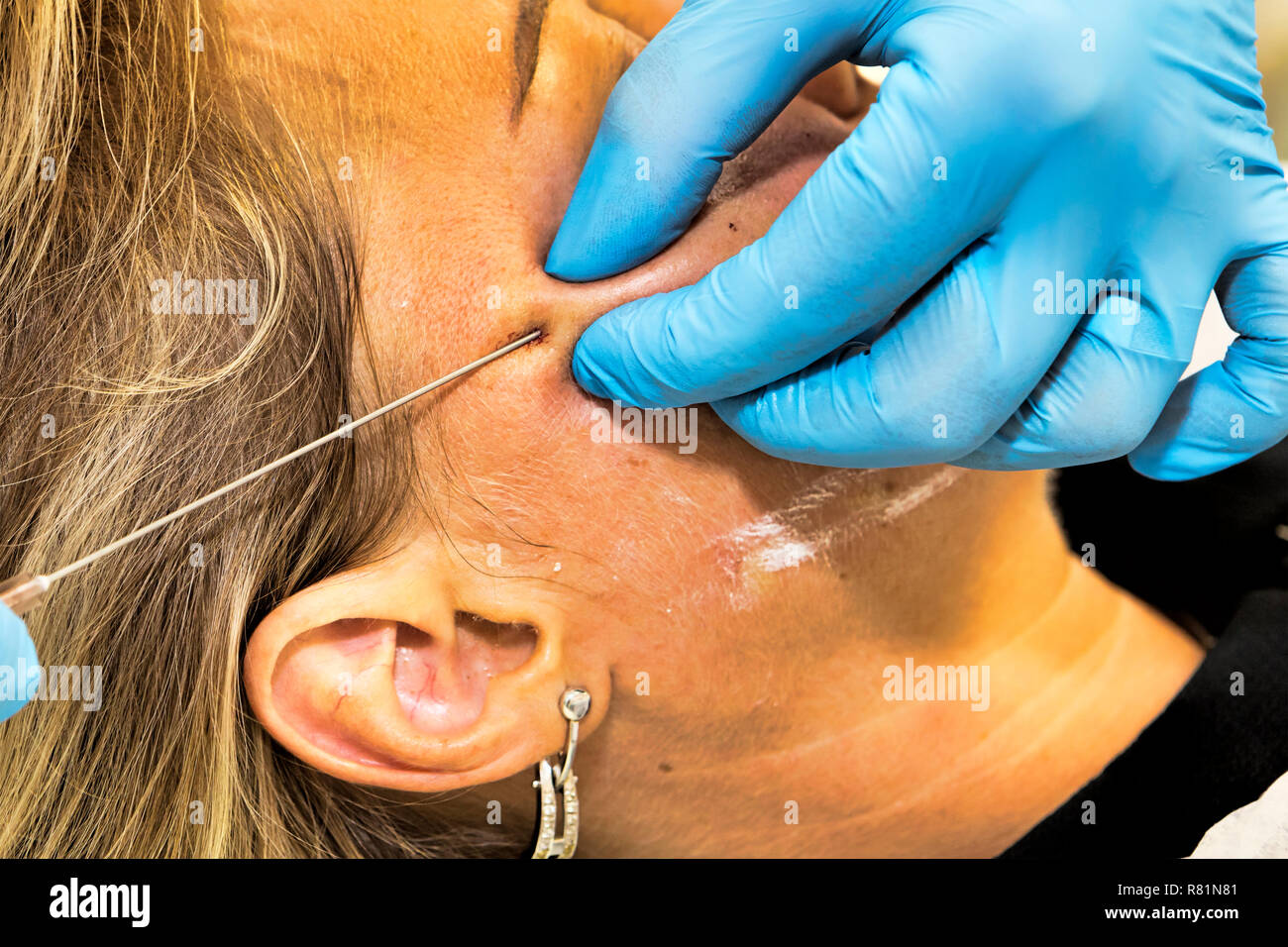 Dermatologist performs anti-age procedure using PDO thread on middle-aged woman patient - selective focus - Stock Image