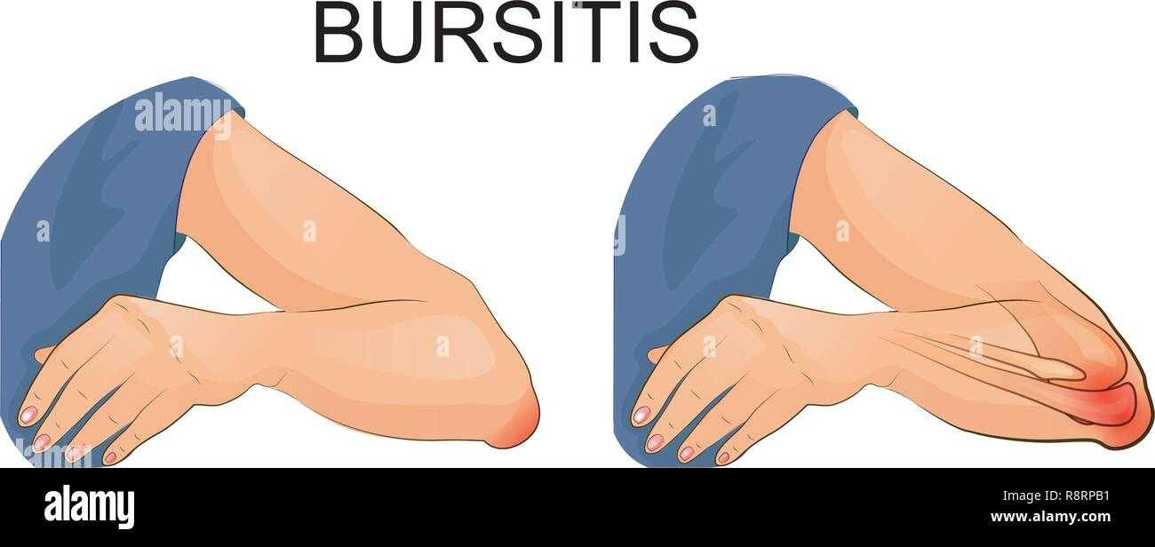 vector illustration of bursitis of the elbow joint. - Stock Vector