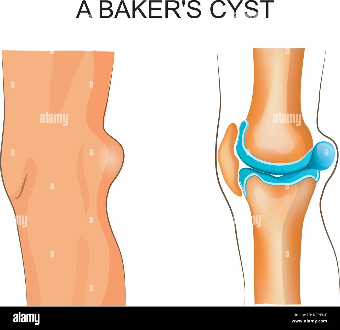 vector illustration of Baker's cyst. traumatology and orthopedics - Stock Image