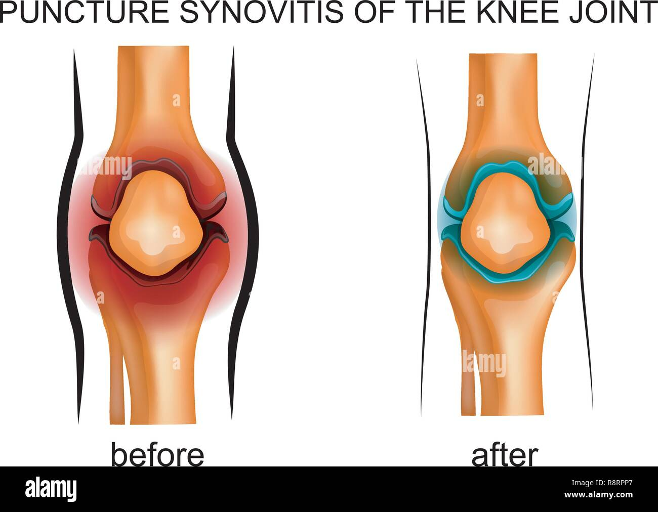 vector illustration of a puncture synovitis of the knee joint - Stock Image