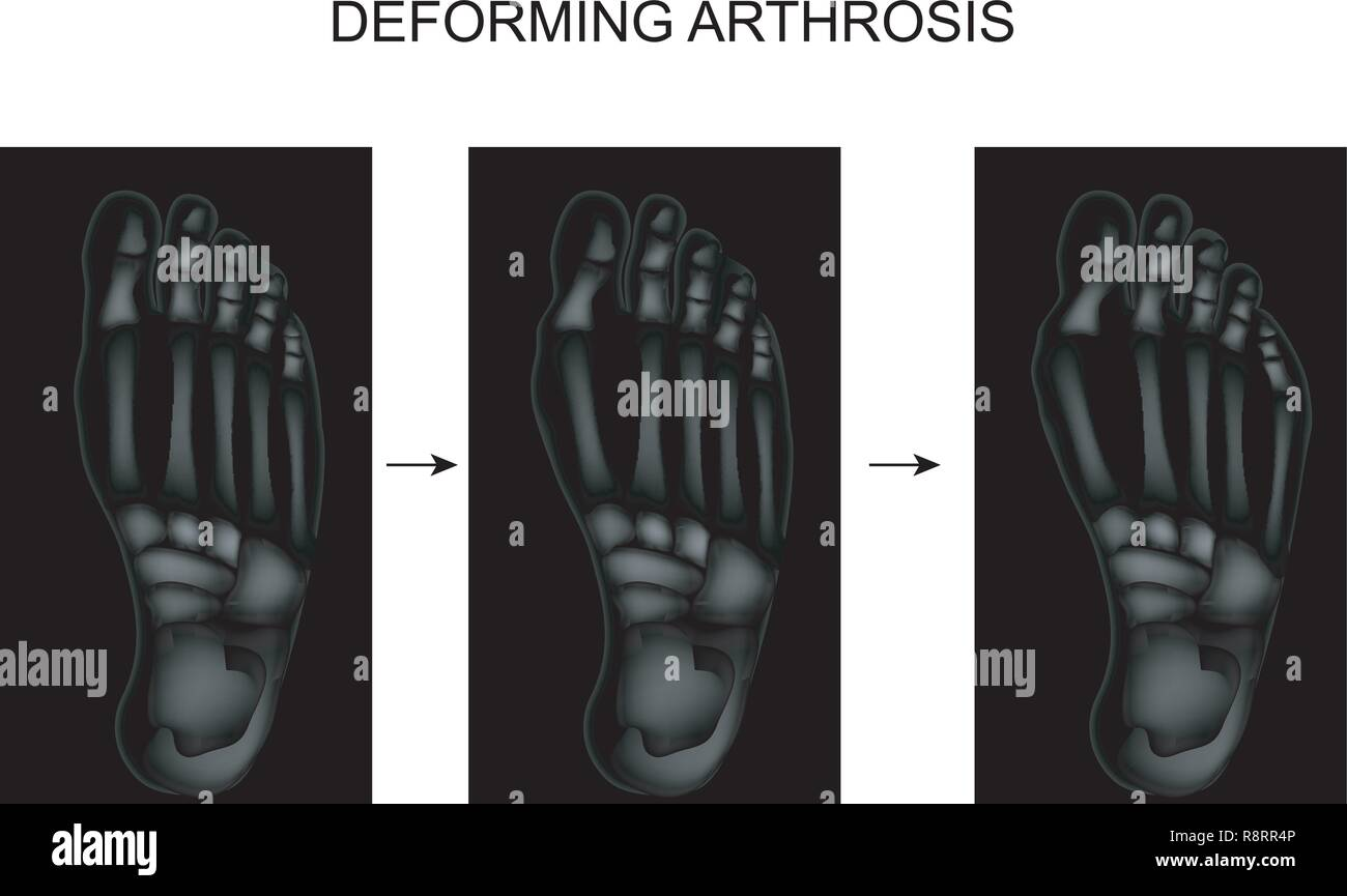 vector illustration of deforming arthrosis of the foot - Stock Image