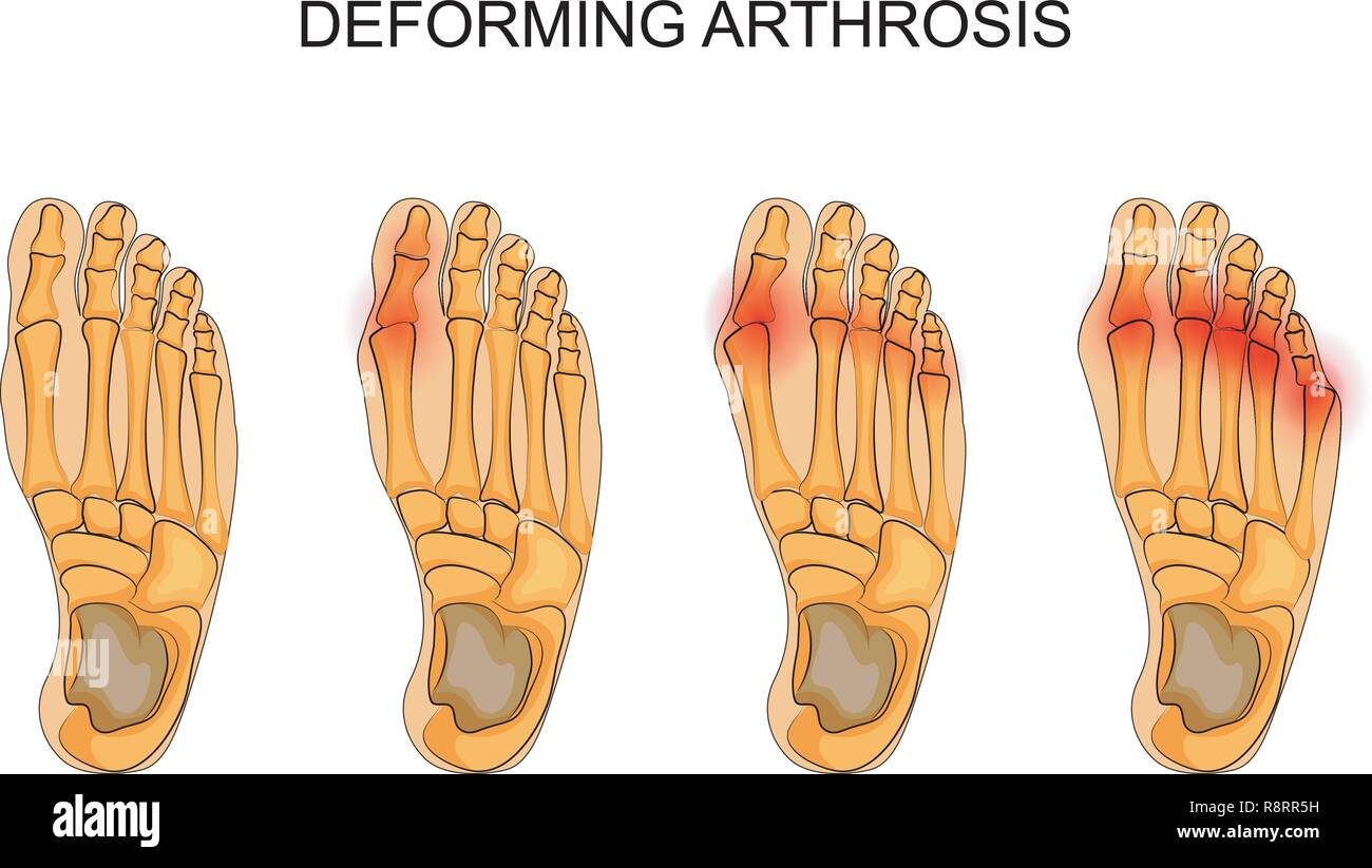 vector illustration of deforming arthrosis of the foot. the skeleton of the foot - Stock Image