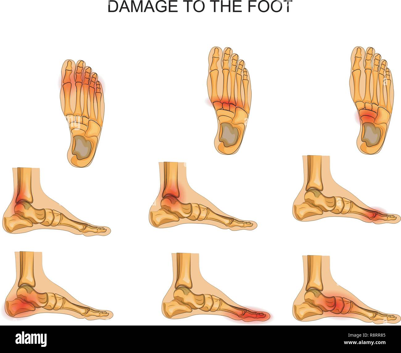 vector illustration of injuries of the foot - Stock Image