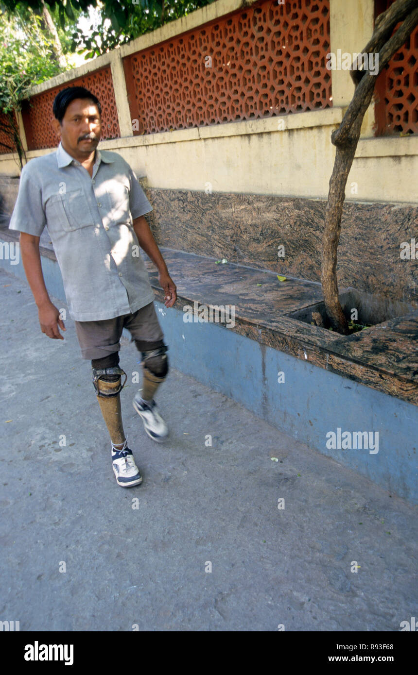 Artificial Jaipur Foot Help the Handicap to walk - Stock Image