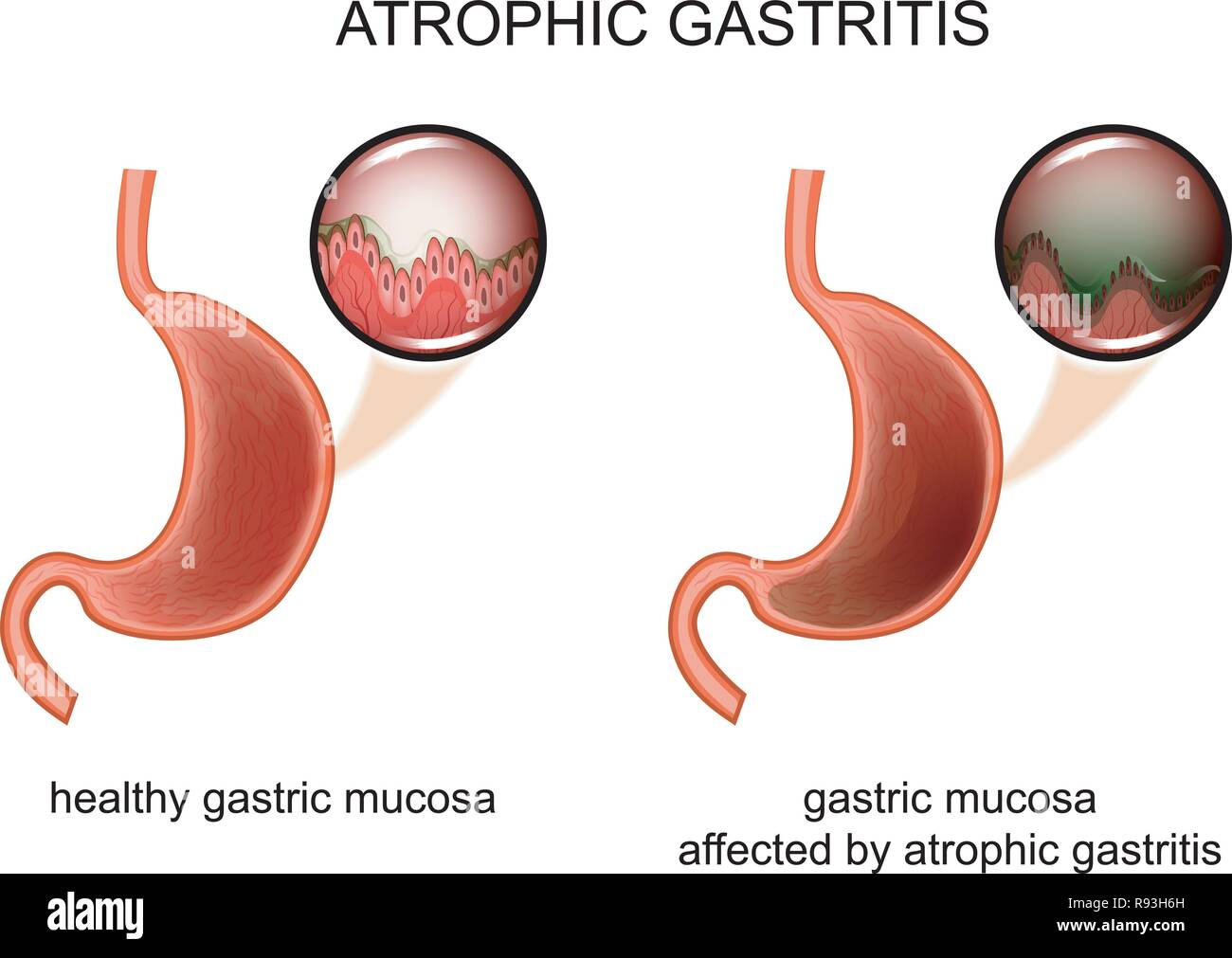vector illustration of atrophic gastritis. inflammation of the mucous membrane. - Stock Image