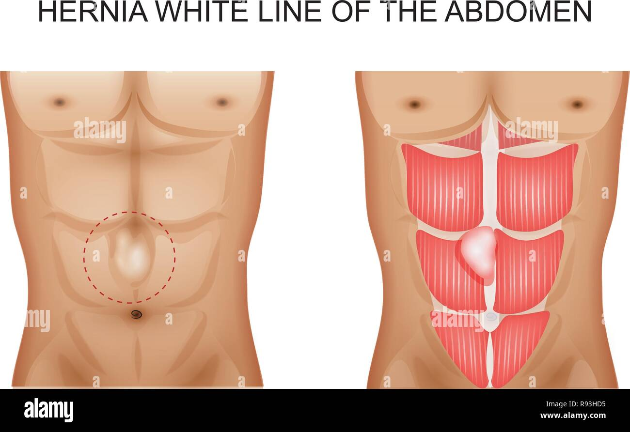 vector illustration of a hernia white line of the abdomen 2 Stock Vector