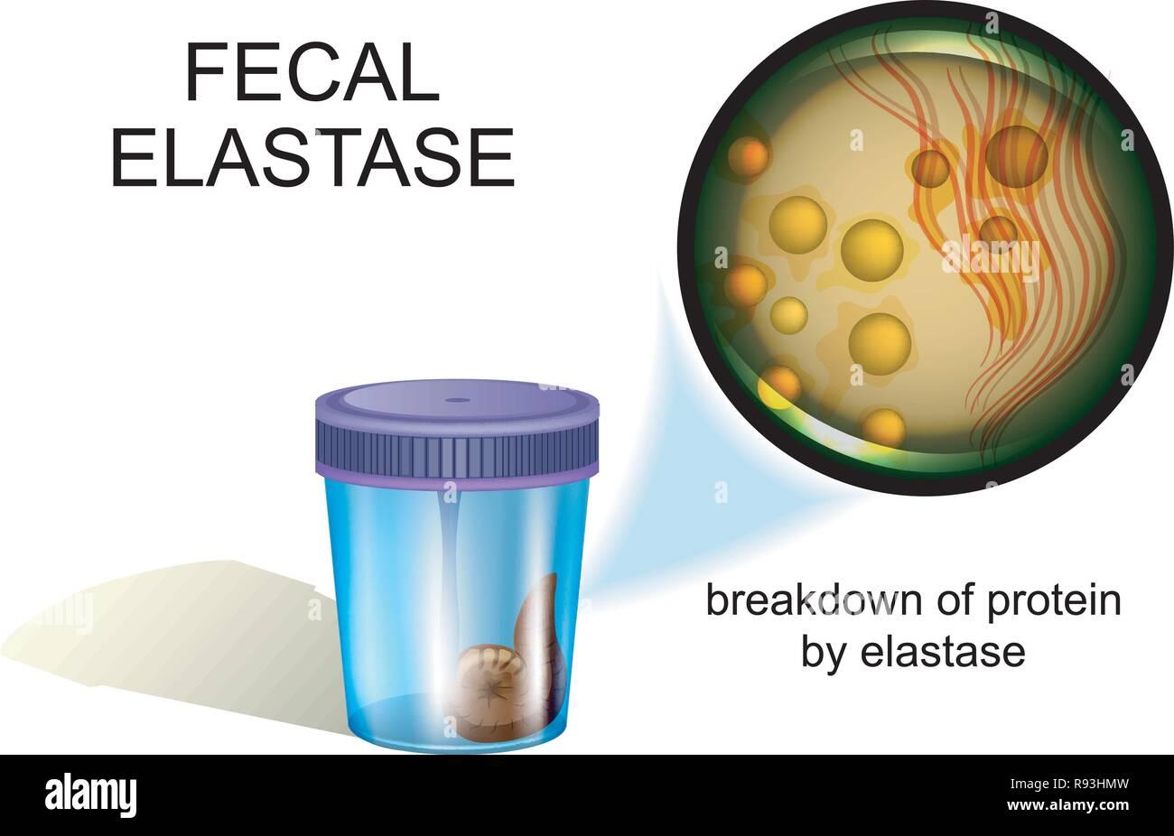 vector illustration of a fecal elastase test, coprology - Stock Vector