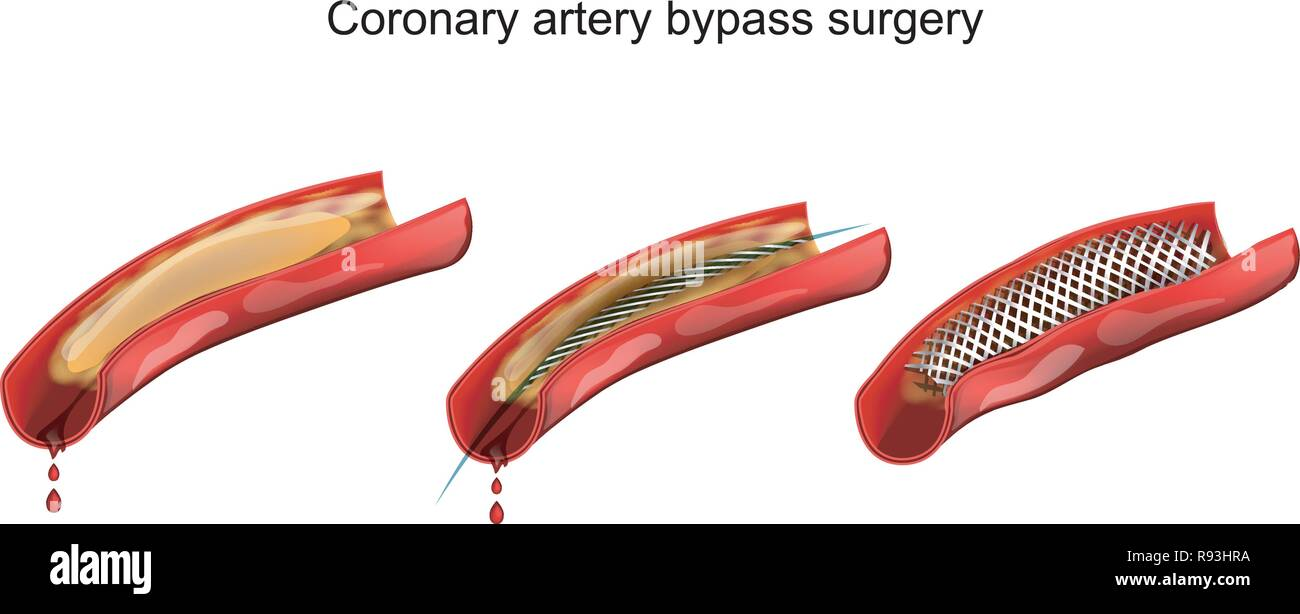 vector illustration of coronary artery bypass vessels - Stock Image
