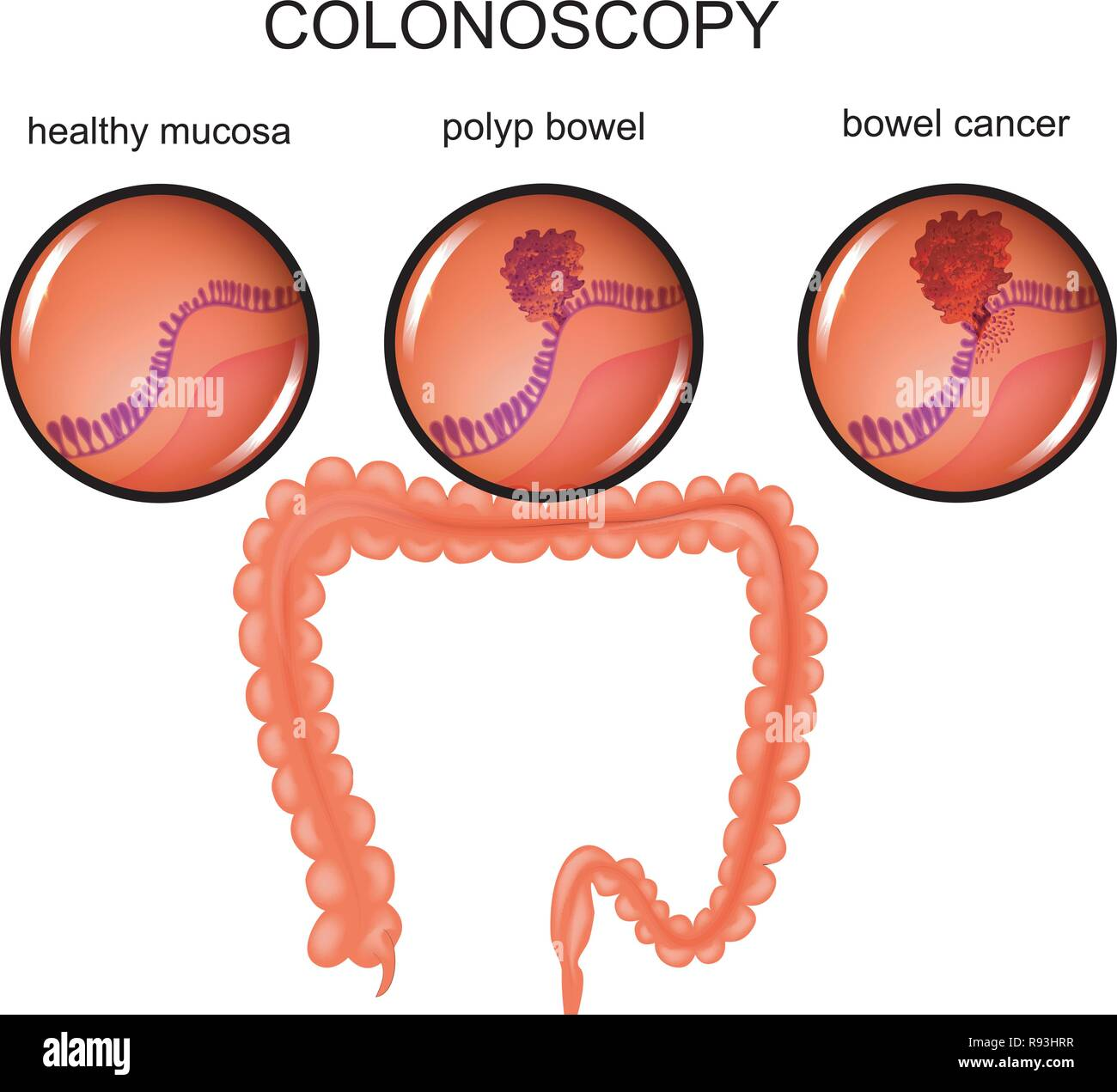 vector illustration of a colon polyp and cancer - Stock Vector
