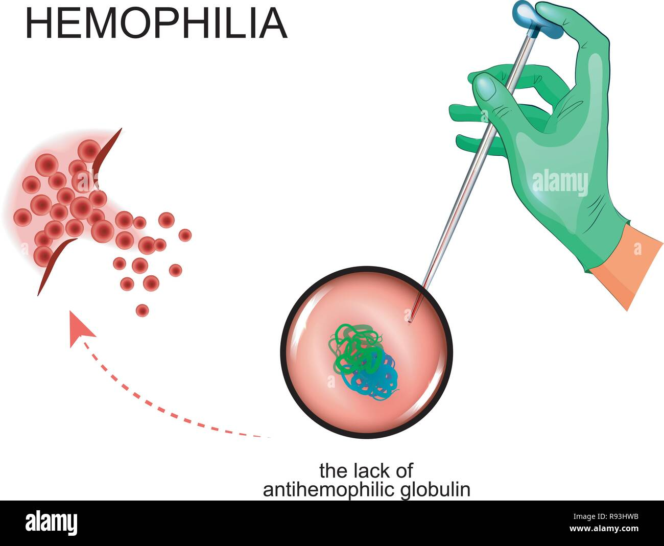 vector illustration of a pathological process in hemophilia - Stock Vector