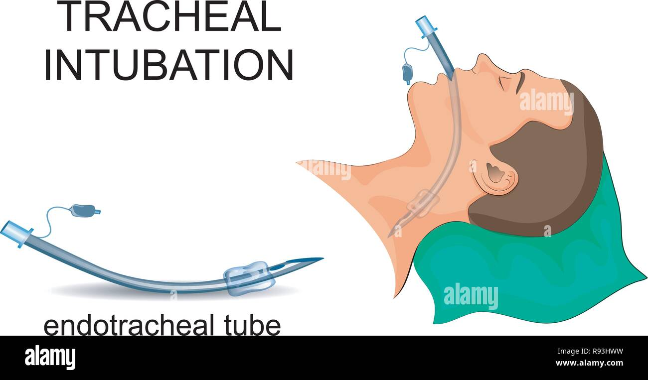vector illustration of tracheal intubation. artificial ventilation of the lungs - Stock Image