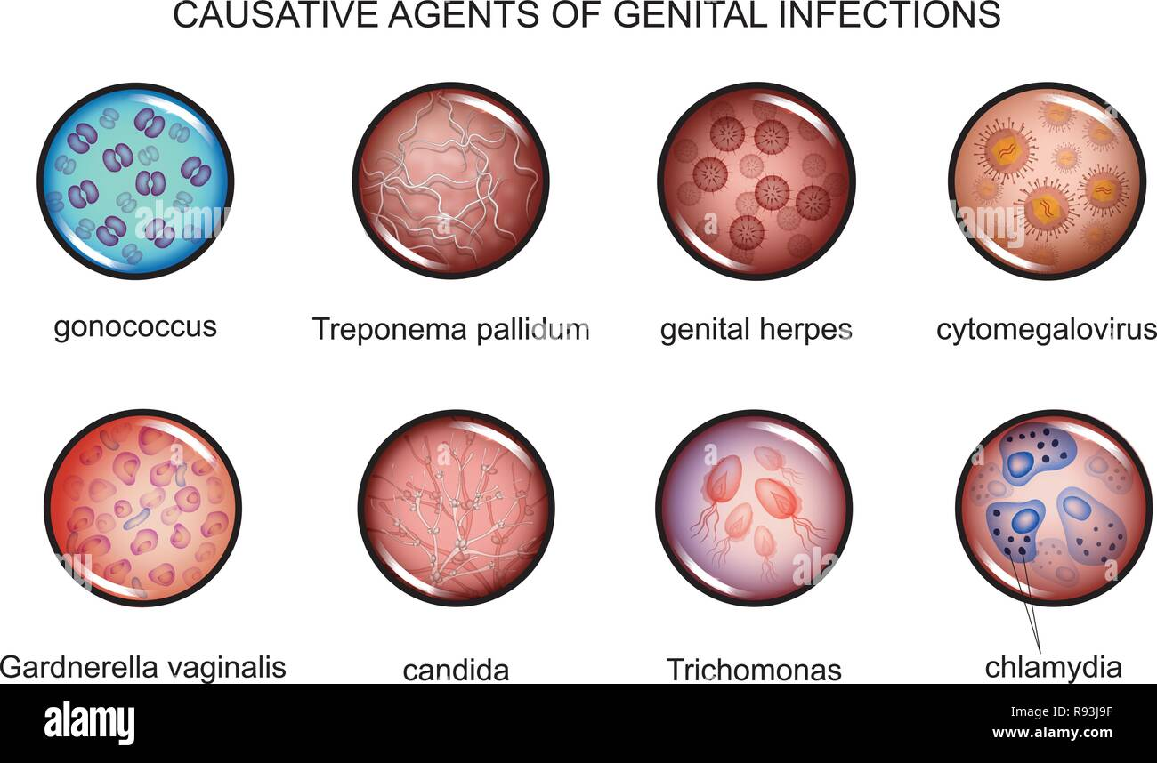 vector illustration of pathogens of sexually transmitted infections - Stock Image